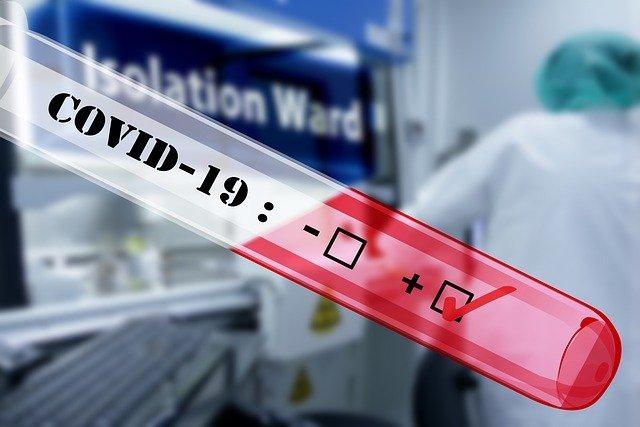 teste antigene recunoscute
